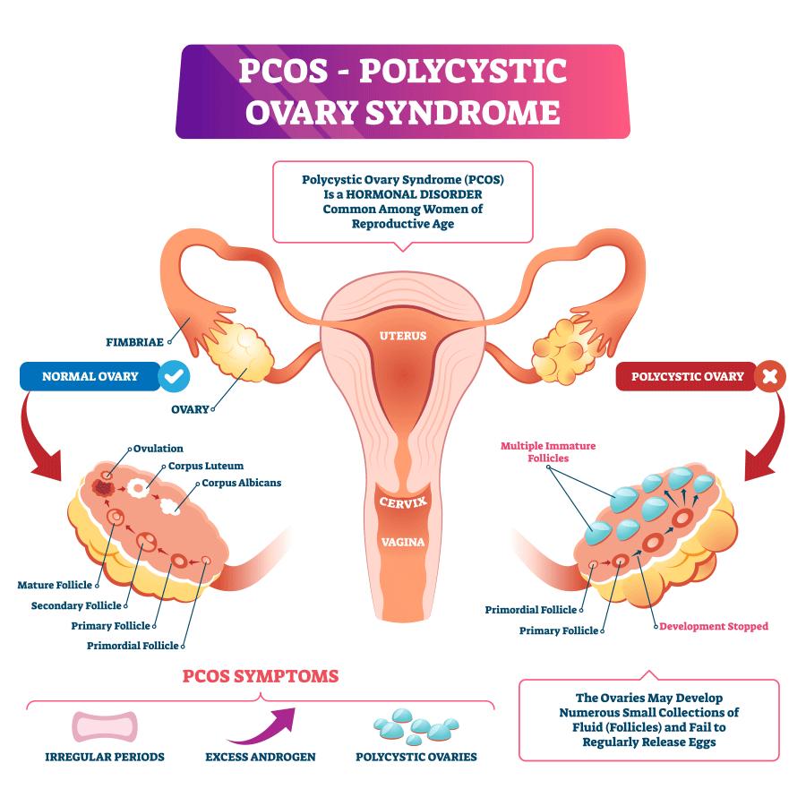 Polycystic-Ovary-Syndrome-diagram